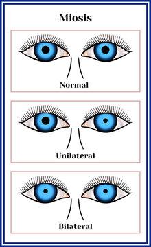 Miosis - narrowing of a pupil.