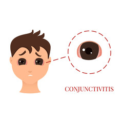 Man with conjunctivitis. Closeup view. Sad patient with pinkeye. Infectious viral disease. Medical concept. Anatomy of people. Vector illustration.