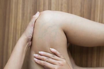Varicose veins on the woman leg