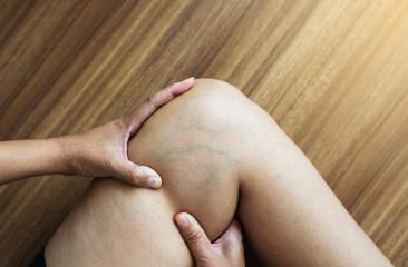 Varicose veins on the woman leg