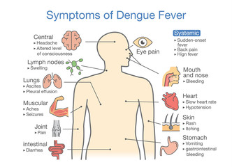 Symptoms of Dengue Fever patient. Illustration about diagram for health check up.