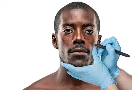 Surgeon drawing marks on male face against gray background. Plastic surgery concept