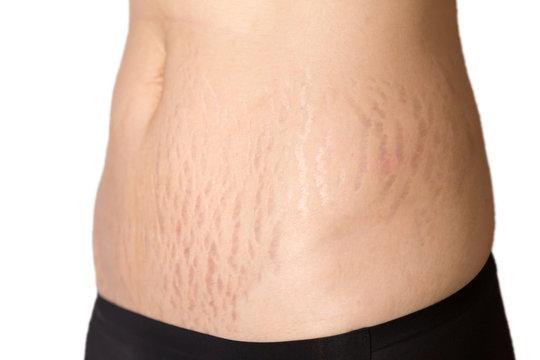 Woman belly fat pattern