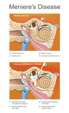 Meniere disease. Illustration. Disorder of the inner ear that can effect hearing and balance to a varying degree.
