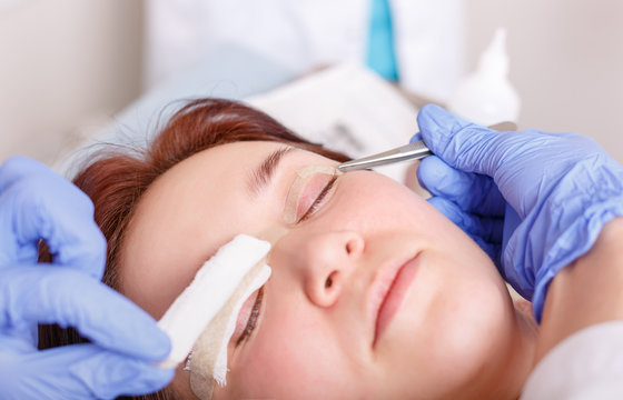 Surgeon applies a bandage to the female patient's eyelids after a blepharoplasty operation