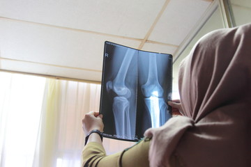 close up of woman doctor holding x-ray or roentgen image
