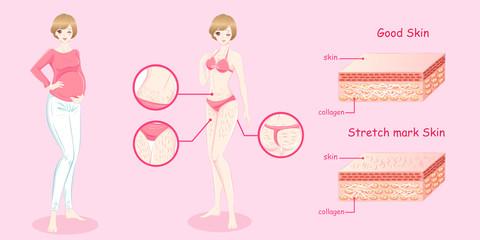 woman with stretch mark skin