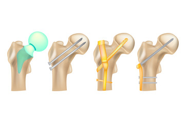 Hip fracture/ Illustration showing a variety of hip repair techniques