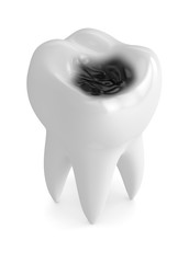 3d render of tooth with decay