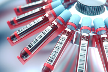 Lab equipment centrifuging blood. Concept image of a blood test.3d rendering. Wall mural