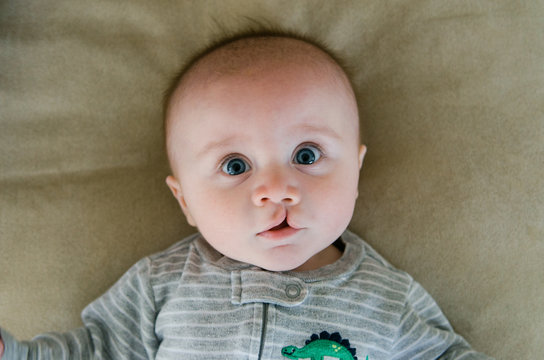 sweet infant with a cleft lip