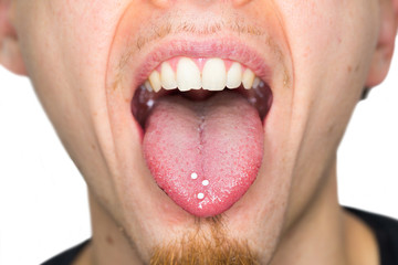 Closeup of a young, handsome male person ingesting homeopathic globules to gently treat diseases
