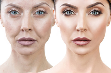 Woman before and after rejuvenation or plastic surgery.