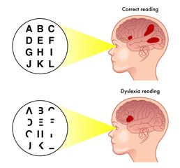 medical illustration of the symptoms of dyslexia