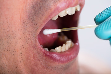 Dentist Making Saliva Test On The Mouth With Cotton Swab