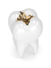 3d render of tooth with dental gold filling