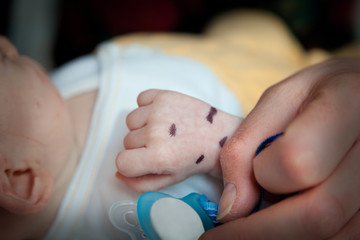 Shallow depth of field of hand of a sick infant patient. Mark on the hand with a pacifier and adult hand in the foreground.