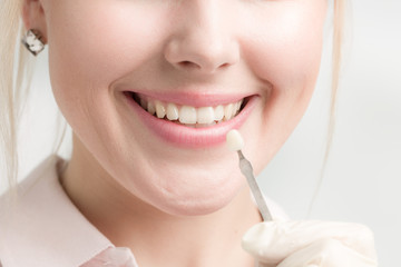 Eine Zahnfarbprobe wird an einen Mund einer jungen Frau gehalten