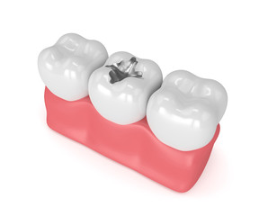 3d render of teeth with dental amalgam filling