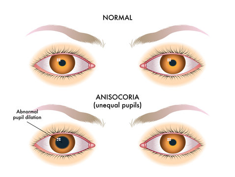 symptoms of unequal pupils called anisocoria