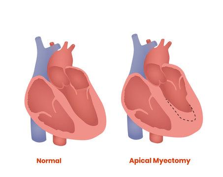 Apical myectomy. Treatment of hypertrophic cardiomyopathy