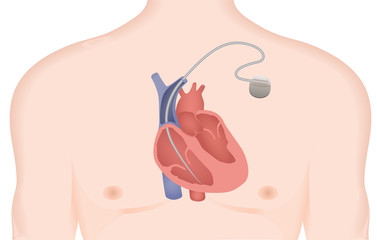 Artificial cardiac pacemaker vector illustration. Implantable Cardioverter Defibrillator