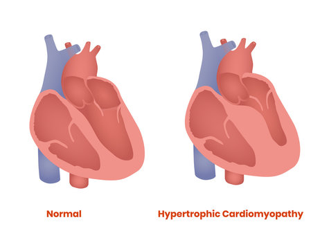 Normal Heart and hypertrophic heart. Hypertrophic Cardiomyopathy vector illustration