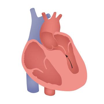 Obstructive hypertrophic septal cardiomyopathy illustration