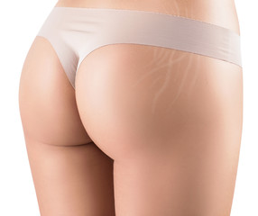 Female buttocks with stretching marks. Stretchmarks concept.