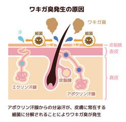 ワキガ臭発生の原因イラスト (腋臭・わきが)