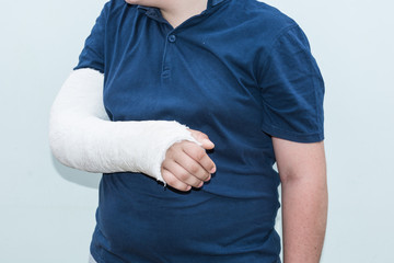 Boy with broken arm, plaster on arm as therapy.