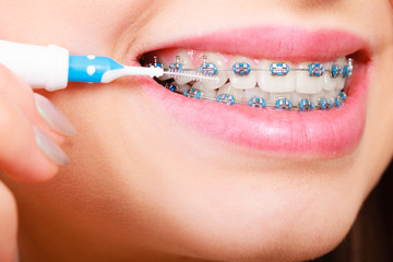 Woman brushing teeth with braces using brush