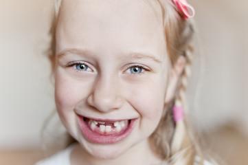 Headshot of youngåÊsmiling girl lacking teeth