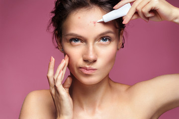 Scowling girl pointing at her acne and appling treatment cream. Photo of young girl with problem skin on pink background. Skin care concept