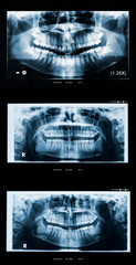 Adult woman panoramic dental x-ray evolution in teen years