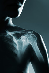 Human shoulder joint in x-ray, on gray background.