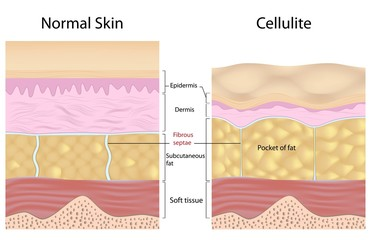 Cellulite versus smooth skin, labeled