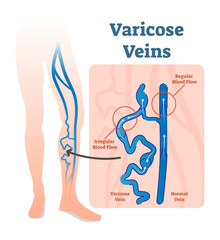 Varicose veins with irregular blood flow and healthy veins vector illustration diagram scheme.