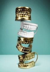 Stack of dental teeth molds cast in gold and white