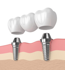 3d render of implants supported dental bridge