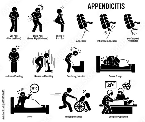 Appendix and appendicitis icons pictogram and diagrams depict signs appendix and appendicitis icons pictogram and diagrams depict signs symptoms and emergency surgery ccuart Gallery