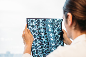 Doctor holds MRI scan or X-Ray film of heap joint