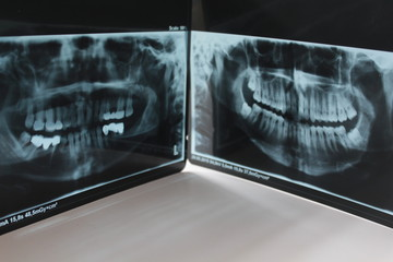 tooth dental healthy radiography