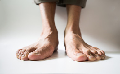 Wrinkles of the rough feet of an elderly man standing on a white Wall mural