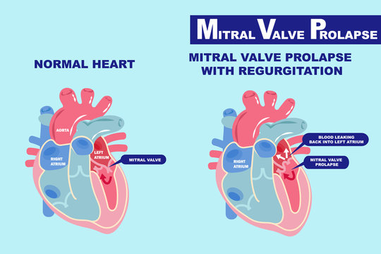 heart with mitral valve prolapse