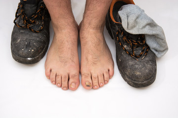 excessive wearing of working footwear as the cause of nail diseases, showing diseased nails on a clean white cotton fabric