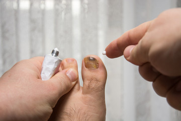 using medication and cream comes to the treatment of nail disease, treatment of nail disorders