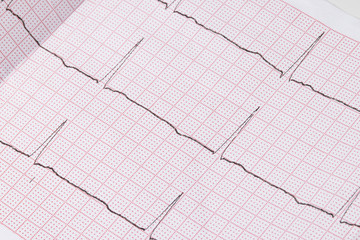 Close up of an electrocardiogram in paper form, medical healthcare