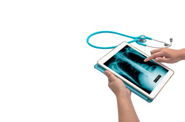 x-ray picture in tablet
