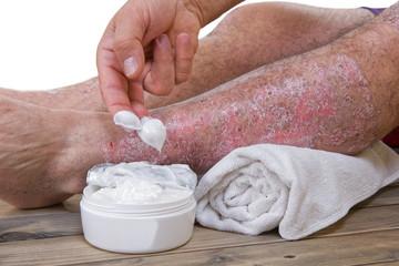 Psoriasis skin lesions